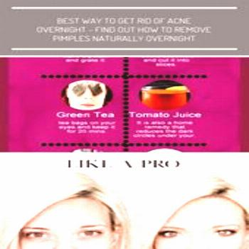 Best Beauty Tips For Treating Dark Circles Under Eyes   Acne Remedies Overnight ...,
