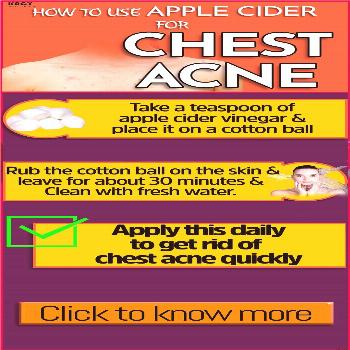 How To Get Rid Of Chest Acne Quickly |