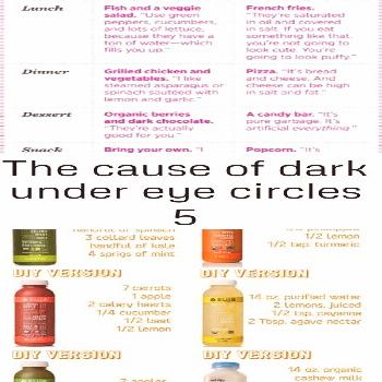 The cause of dark under eye circles 5 The cause of dark under eye circles 5 Rachel Robinson rachelr