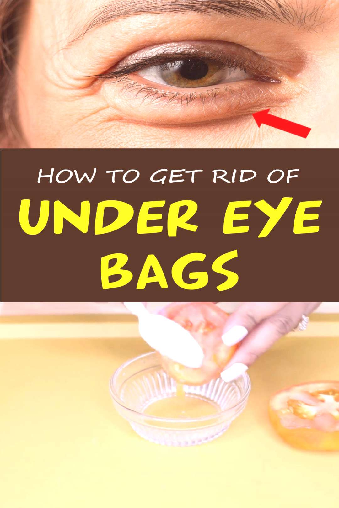 How to Get Rid of Dark Circles Under Your Eyes: Top 9 Home Remedies that Work How to Get Rid of Dar